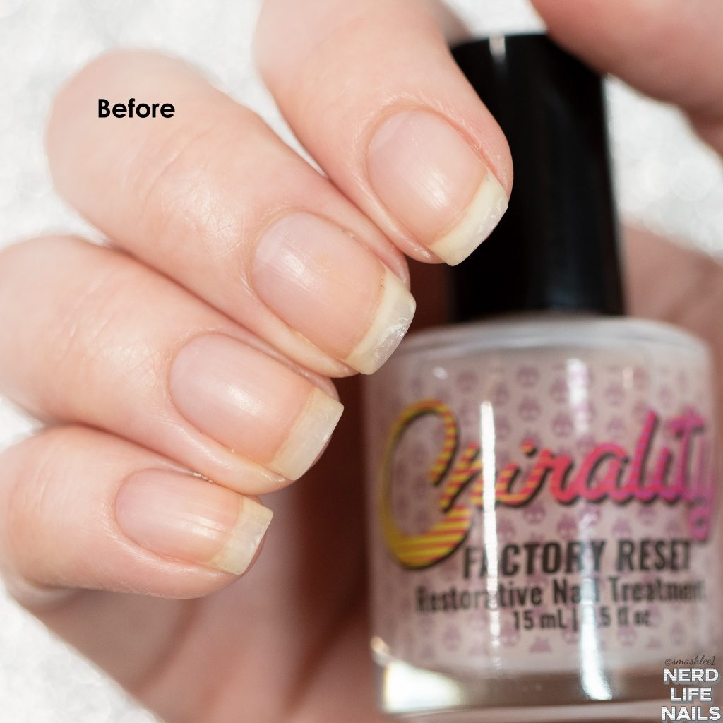 Chirality - Factory Reset - Restorative Nail Treatment Before